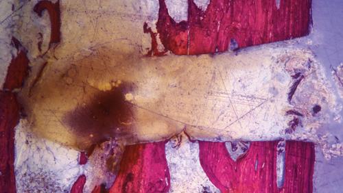 foto istologica di osso tagliato da fresa